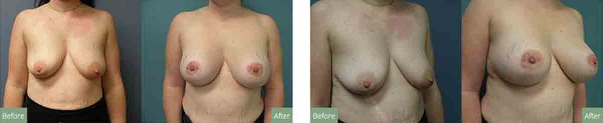 What happens when a patient requests a mastopexy (breast lift)