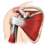 Rotator cuff tears – natural history and surgical indications