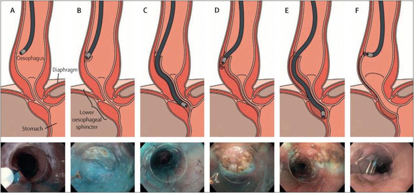 Lancet Gastroenterology & Hepatology 2018