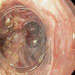 Oesophageal Sphincter